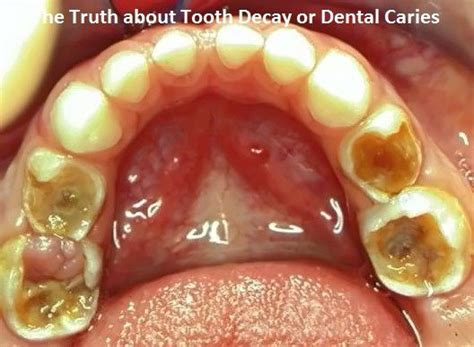 truth  tooth decay  dental caries mamas