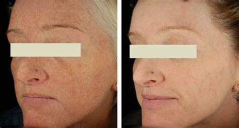 ipl pulsed light pulsed light before and after pictures photos