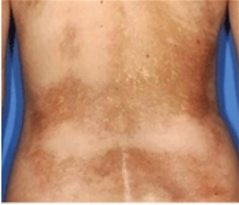 Pictures Of Scleroderma Rash scleroderma american academy of dermatology