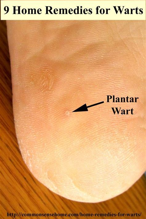 Planters Wart Removal At Home by 25 Best Ideas About Plantar Wart Treatment On