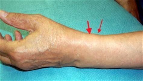 schmerzen handgelenk innen sehnenscheiden entz 252 ndung de quervain eine einf 252 hrung