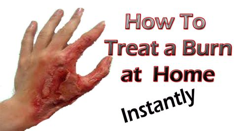 burn treatment how to treat burn best home remedy for