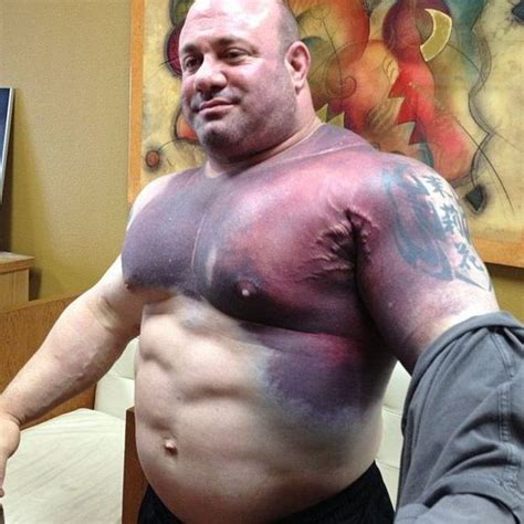 bench press injuries chest the aftermath of the world record bench press attempt
