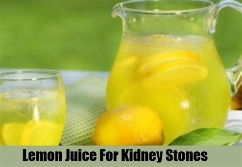 15 home remedies for kidney stones treatments