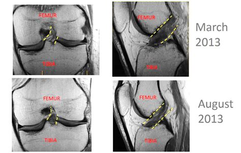 acl surgery recovery content retrieval 2015 personal
