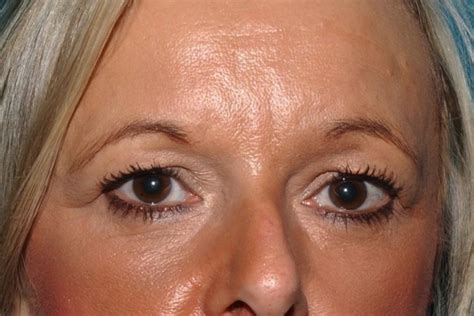 does a fringe hide forehead wrincles getting rid of frown wrinkles without botox and obtaining