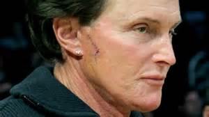 worst male plastic surgery of 2012 makemeheal com
