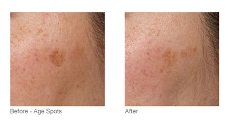 tria beauty laser before and after pictures tria s anti aging laser is an at home alternative to