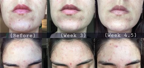 Regular Acne paula s choice salicylic acid review the acne experiment crappy candle