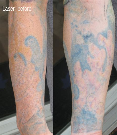 full sleeve tattoo removal lasered bio coverup sleeve education