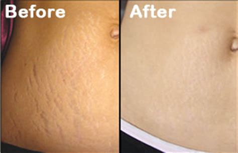 stretch mark removal orlando winter park laser