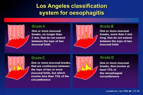 DISEASES OF THE ESOPHAGUS - ppt download La Classification For Esophagitis