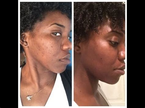 scar removal cream for african americans 5 effective ways to get rid of pimple scars botswana