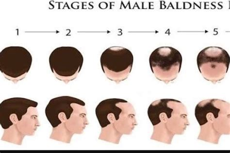 men losing hair three of the most common hair breakage causes why is the hair loss problem only found in men not women