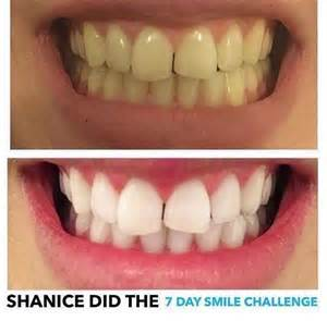 best at home teeth whitening kits australia reviews