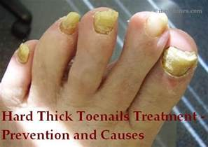 thick toenails treatment prevention and causes