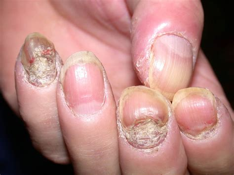 Nail Problems by Nail Psoriasis Photos On The