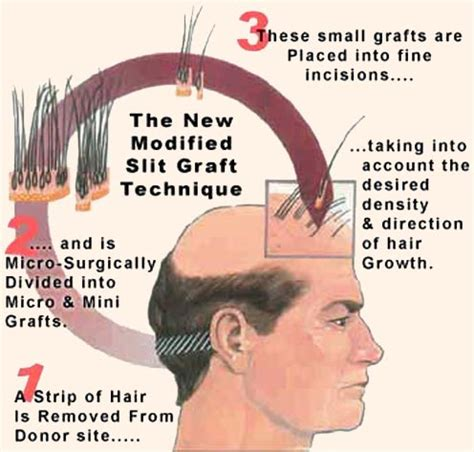 new hair transplant technology hair transplant invision hair care center
