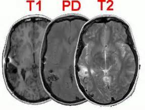 Proton Density Mri Tutorial For Mricro Image Freeware
