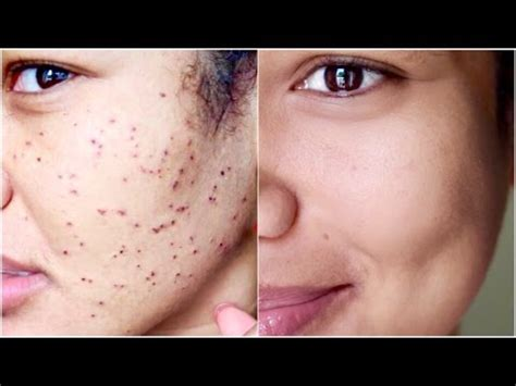 Remove It warts dpns removal diary what to expect when removing