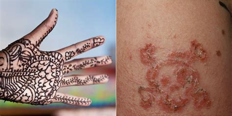 henna tattoo allergy treatment 10 year boy suffers allergic reaction to black henna