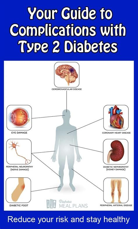 how can i reduce type 2 5ar 25 best ideas about type 2 diabetes symptoms on pinterest