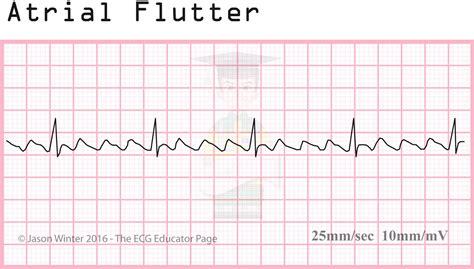 educator atrial rhythms