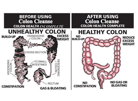 Stomach And Colon Detox by Will Colon Cleansing Help You Lose Weight Flatten Your