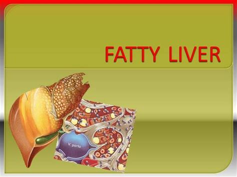 powerpoint templates free download liver fatty liver muhammad mustansar authorstream