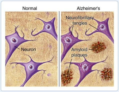 alzheimer s new discovery of the source of neuron death in alzheimer s