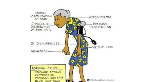 dissenteria alimentazione diarrea e dissenteria sintomi cause e cura the