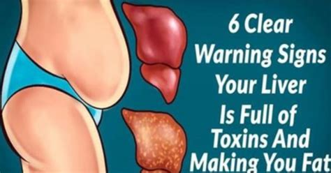 Signs Your Liver Needs A Detox by 6 Clear Warning Signs Your Liver Is Of Toxins And