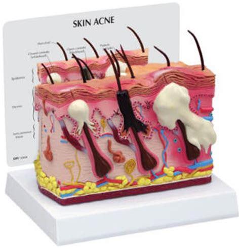pimple cross section patient information skin models skin acne skin burns