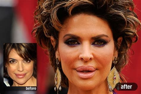 what celebs were mean to lisa rinna on celeb apprentice how much plastic surgery has lisa rinna had over the years