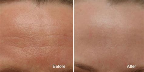 coverage for fine line on forehead reduce wrinkles and lines with treatments from bc laser