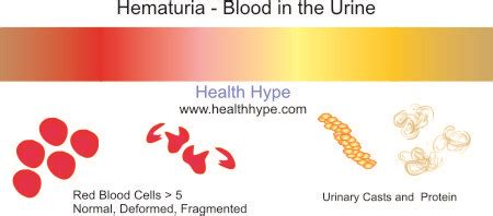 y protein in urine hematuria and bloody color healthhype