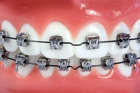 Bracket Behel Metal Sky Ortho types of braces clear braces lingual braces mint