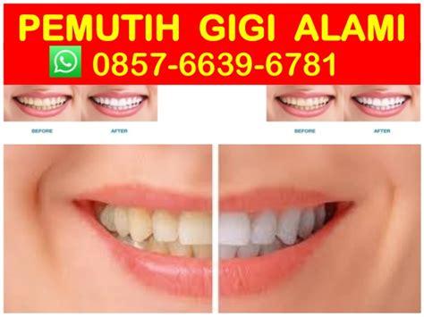 Jual Pemutih Gigi Alami hub 0857 6639 6781 wa pemutih gigi alami pemutih gigi