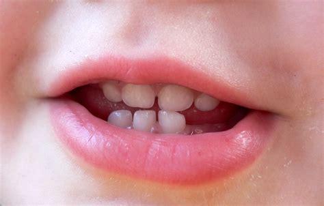 baby teeth sleep archives lollygag learning