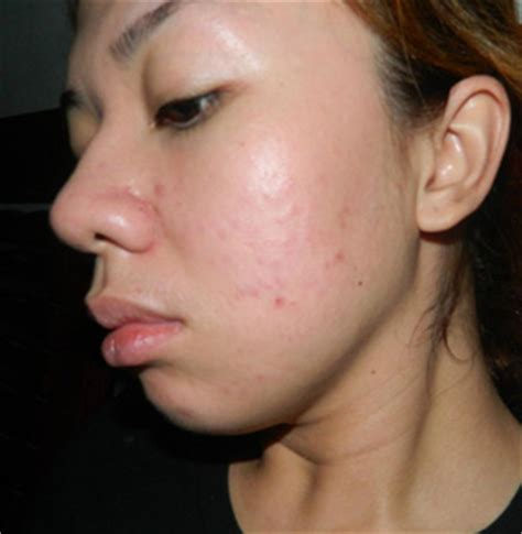 Glow Acne With Tto how to get glowing skin following some simple tips dlt
