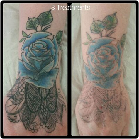 tattoo removal after laser removal cheltenham forever clinic cheltenham