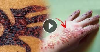 henna tattoo allergic reaction treatment black henna causes allergic reaction to skin that