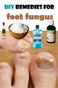 foot fungus home remedy apple cider salud and toe fungus on