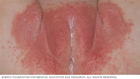 Acidic Stool In Toddlers by Mayoclinic Health Library Slide Show Common Baby Rashes