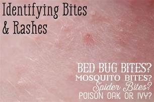 Scabies Vs Bed Bugs Mosquito Bed Bug Spider Bite Differences Healdove