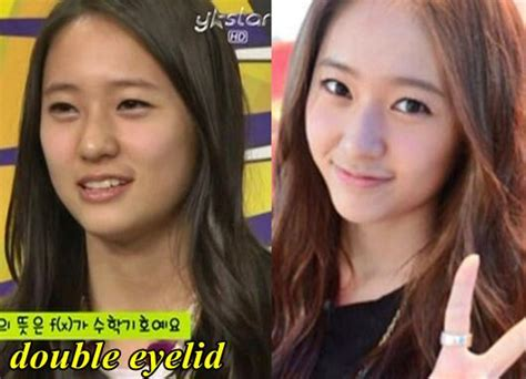 jessica jung before plastic surgery f x krystal jung plastic surgery fact or rumor