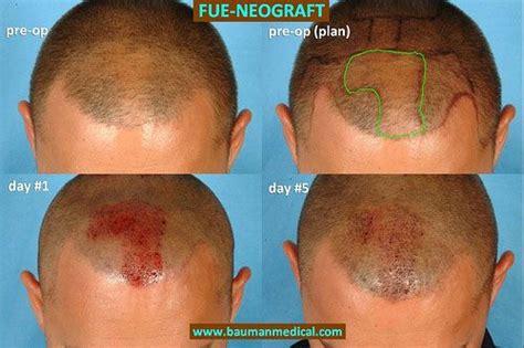 neograft hair transplant nyc fue hair restoration in neograft hair transplant will this new device make fue