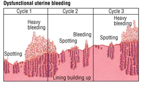 Spotting Vs Light Period by Dysfunctional Uterine Bleeding Guide Causes Symptoms And