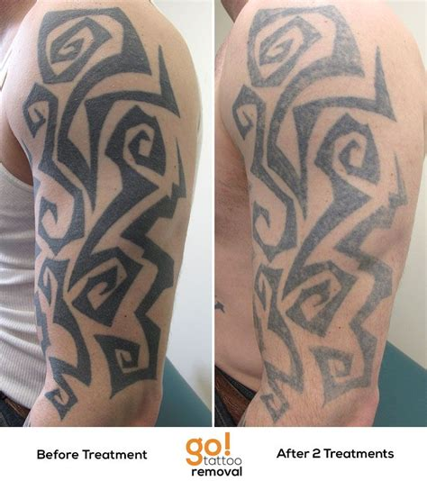 large tattoo removal 2 laser removal treatments on this large