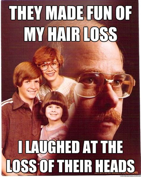 Baldness Meme - hair loss memes image memes at relatably com